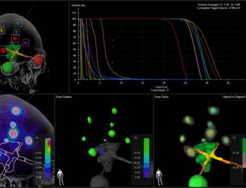 Automation and standardization: redefining best practice in stereotactic radiosurgery